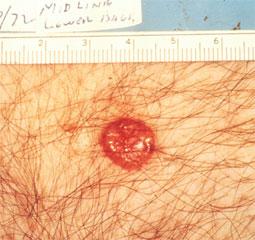 basal-cell-carcinoma