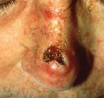 squamous-cell-carcinoma